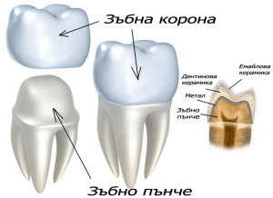 korona-metalokeramika